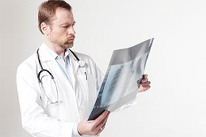 レントゲンを見ている医者